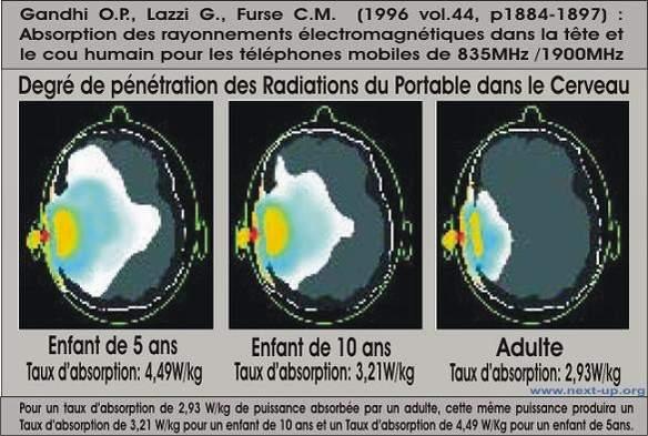 DAS-radiation-telephone
