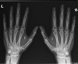 puce-rfid-implantation-dans-les-mains