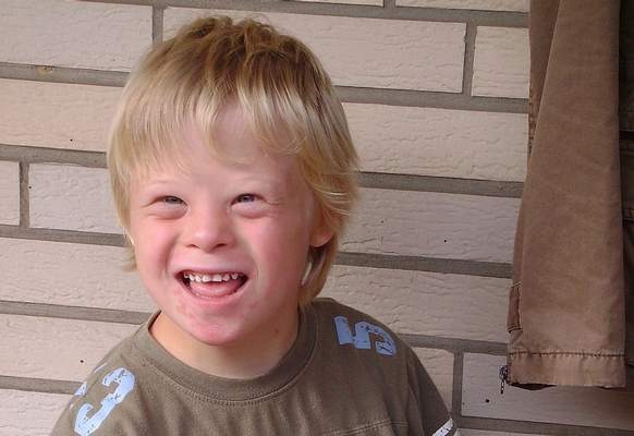 Boy_with_Down_syndrome