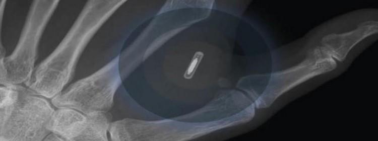 implant-humain-peau