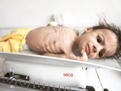 yemen+food+crisis