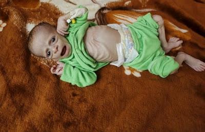 yemeni+child+starving